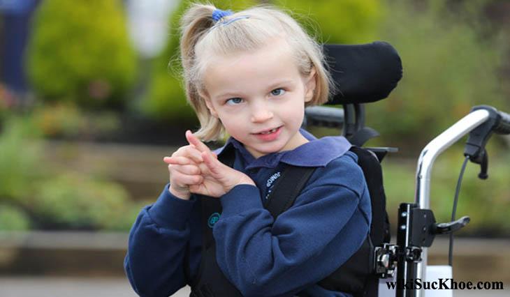 Bệnh bại não có thể dẫn đến bại liệt