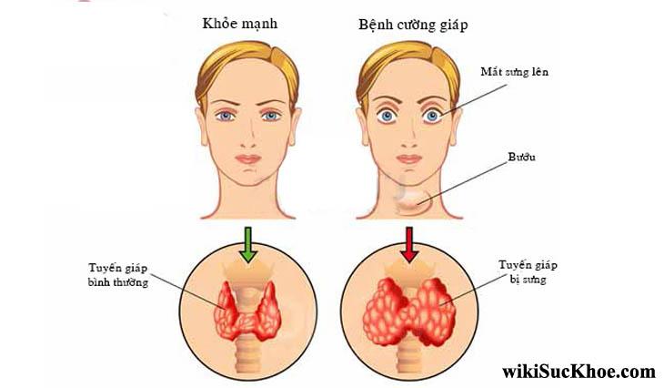 Bệnh cường tuyến giáp: Khái niệm, nguyên nhân, triệu chứng, điều trị, cách phòng ngừa