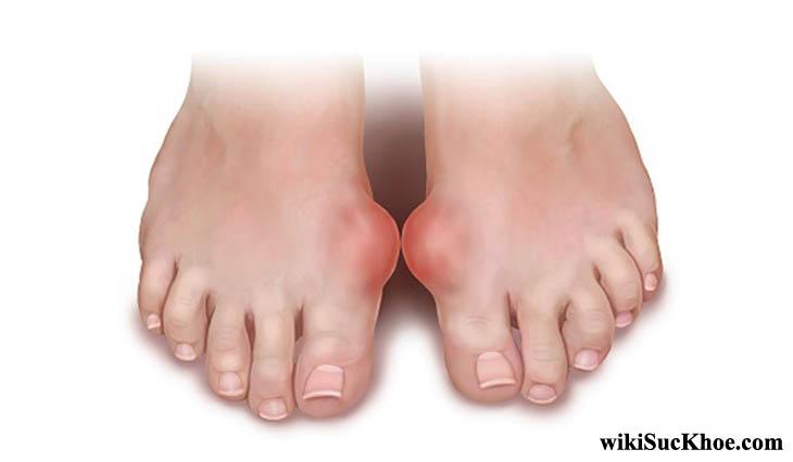 Bệnh Gout gây ra sự lắng đọng axit uric làm sưng tấy, đau khớp