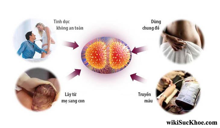 Bệnh lậu: Khái niệm, nguyên nhân, triệu chứng và cách chữa trị