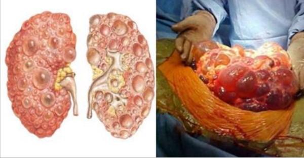 Bệnh sỏi thận gây ách tắc đường tiểu và cuống đài thận