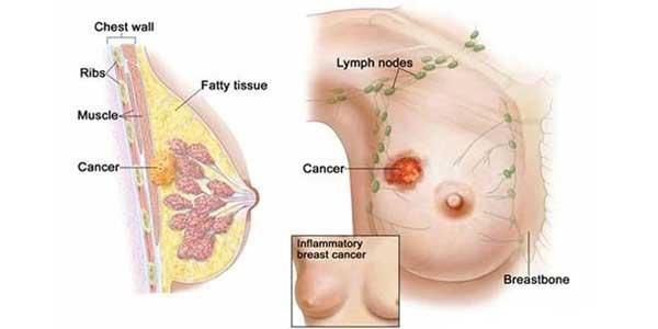 Bệnh ung thư vú: Khái niệm, nguyên nhân, triệu chứng,điều trị và cách phòng ngừa